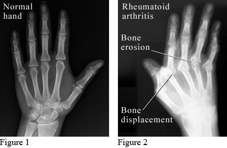 Normal Hands vs. Arthritic Hands