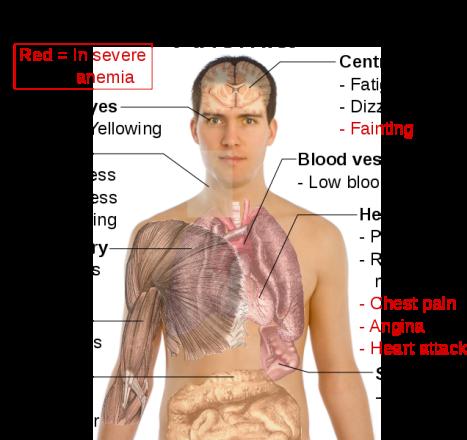 low dose naltrexone methotrexate